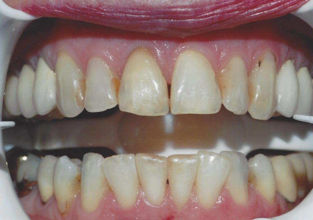 Full Porcelain Crowns 1 B4