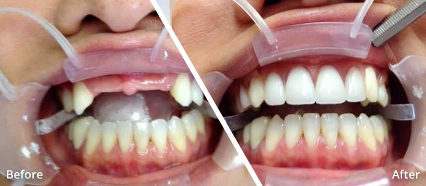 alicia dental before after