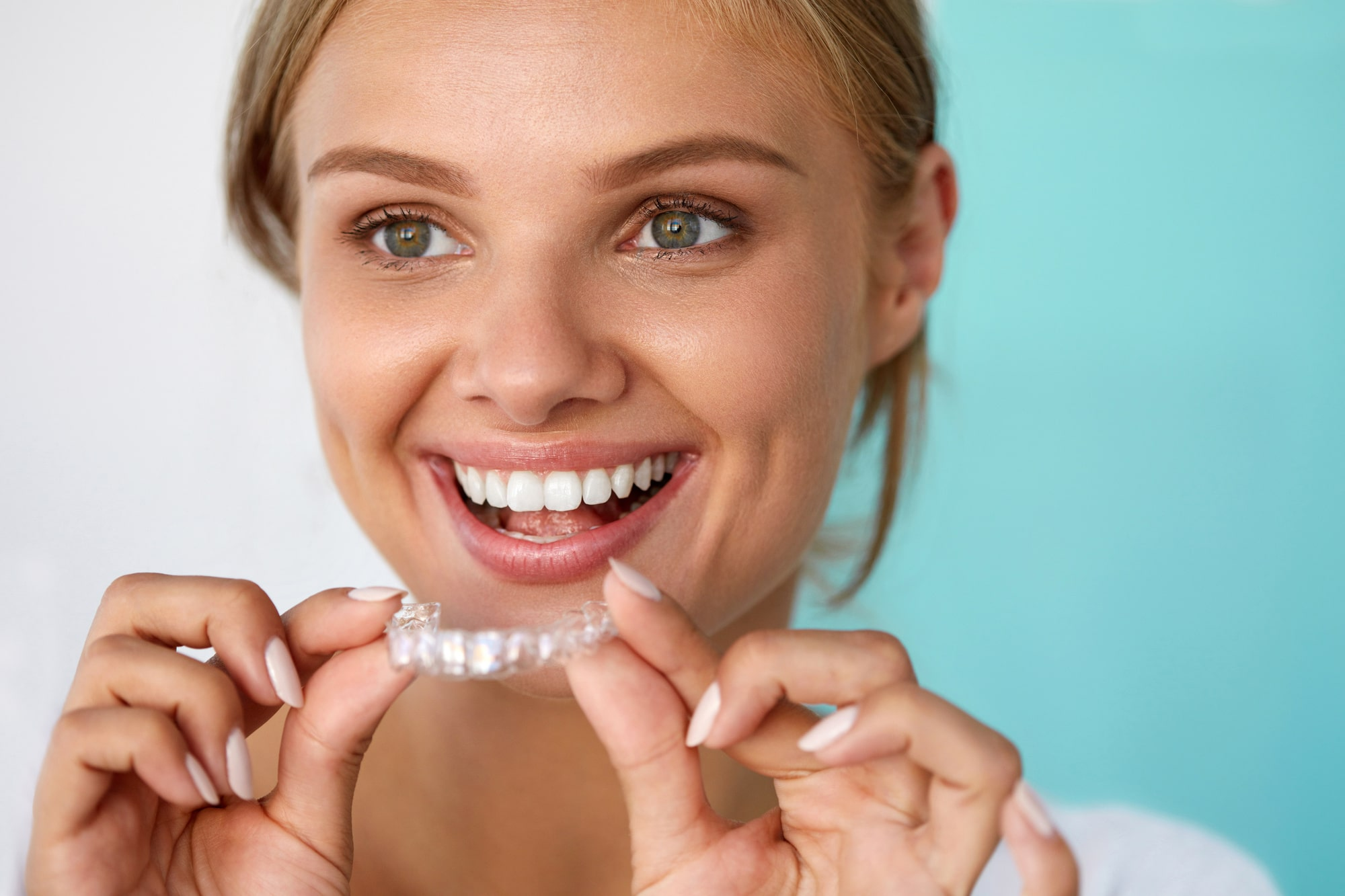 Invisalign Advantages