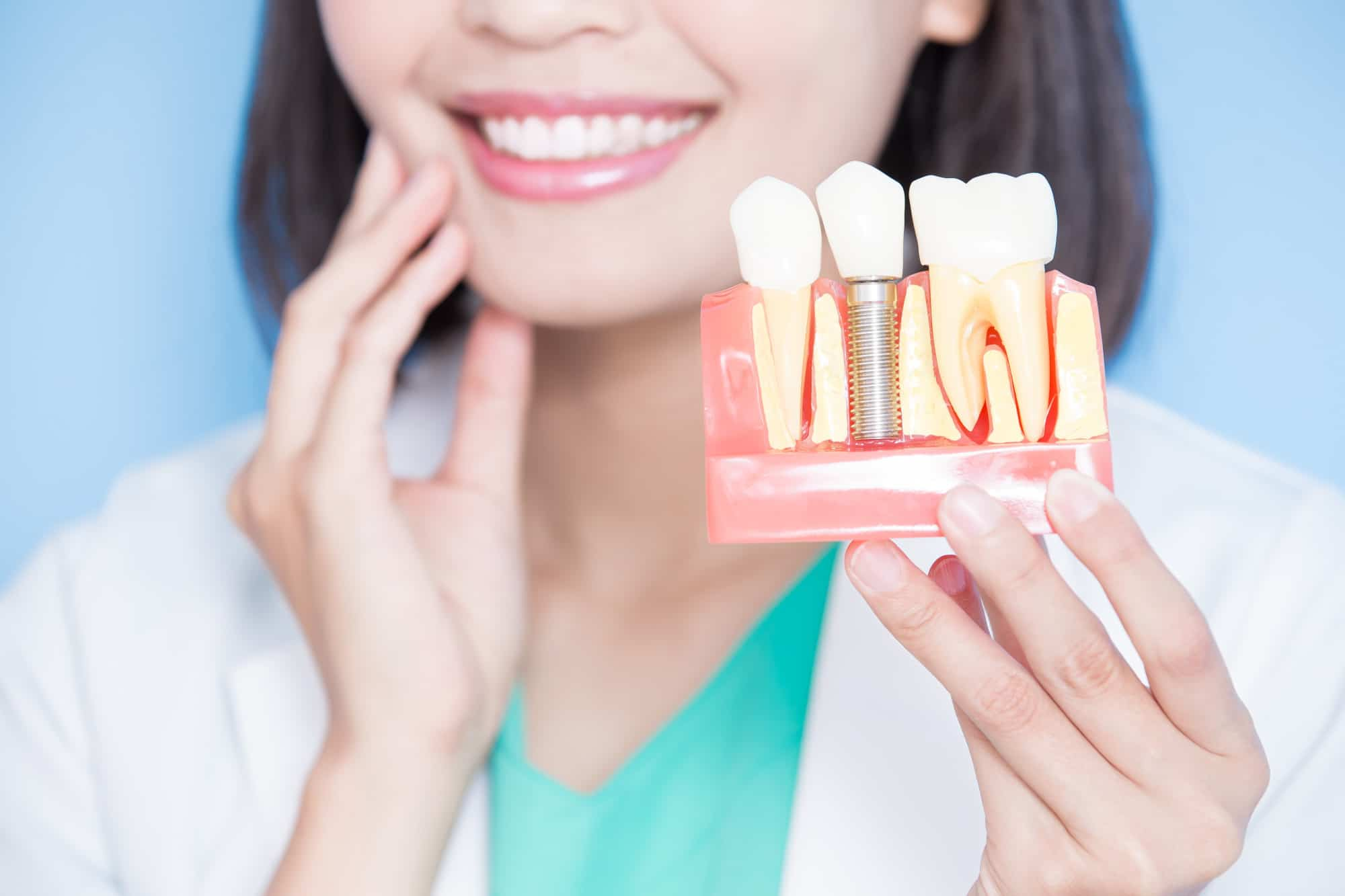 Dental implants vs. bridges